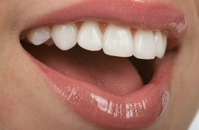 Lumineers Or Porcelain Veneers – Which Are Better?