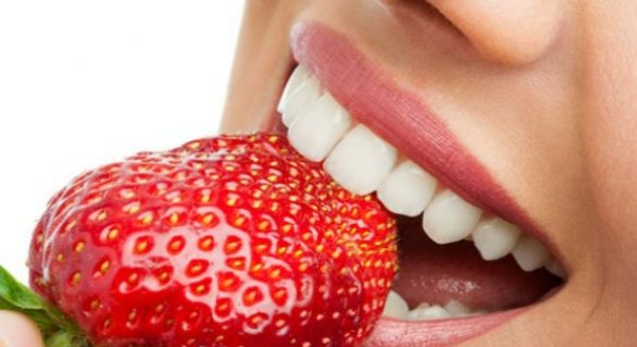 Professional Or At-Home Teeth Whitening Treatment – Which Is Better