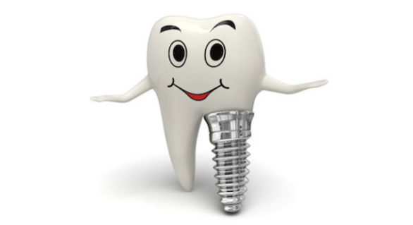 The All-inclusive Guide to Dental Implants
