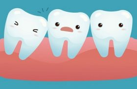 Wisdom Tooth Removal: Necessity vs Prevention
